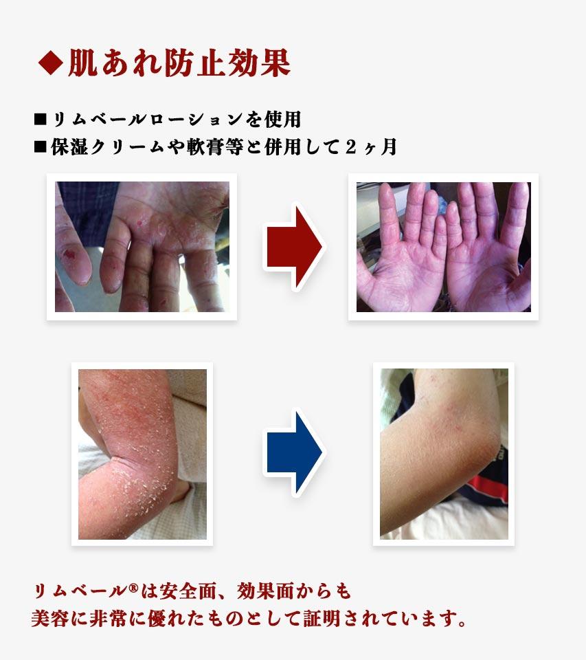 肌荒れ防止効果